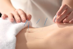 Acupuncture Treatment at Elite Spine and Sports Care Totowa NJ