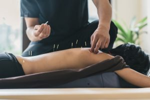 Acupuncture in Passaic County by Elite Spine